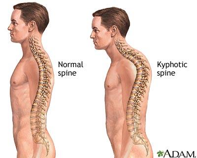 kyphosis1