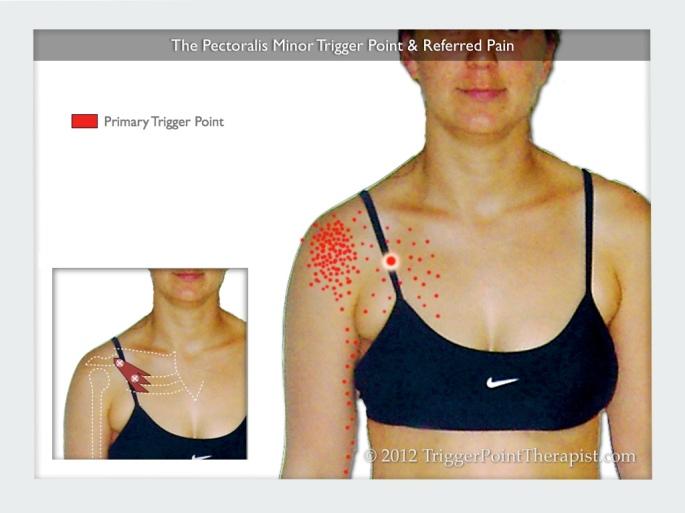 pectoralis_minor_trigger_points_referred_pain.jpg